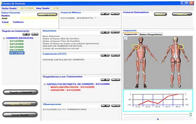 FISIO DIAGNOSTIC v4.4 Software para fisioterapia