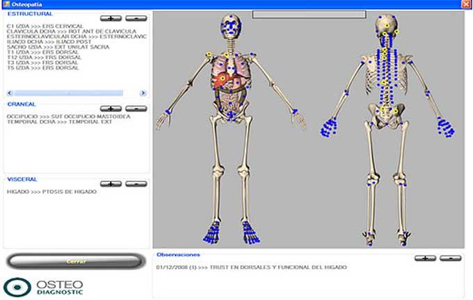 Sixthfinger Software para fisioterapia