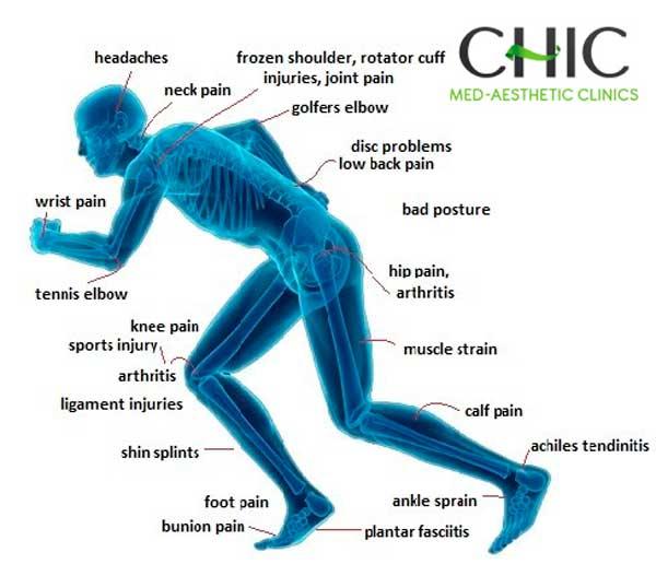 Tipos de lesiones fisioterapia integral