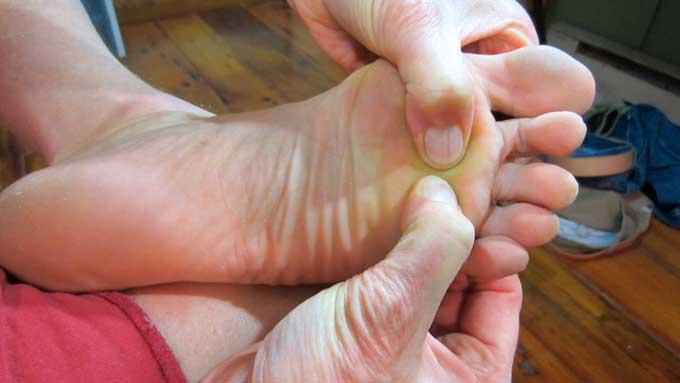 Tratamiento con fisioterapia del neuroma de Morton